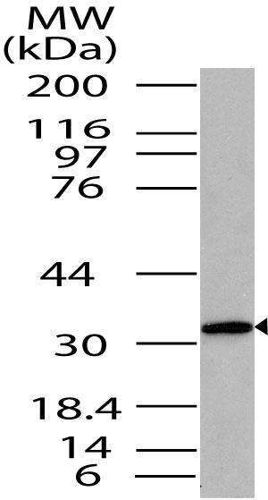 Polyclonal Antibody to ST2