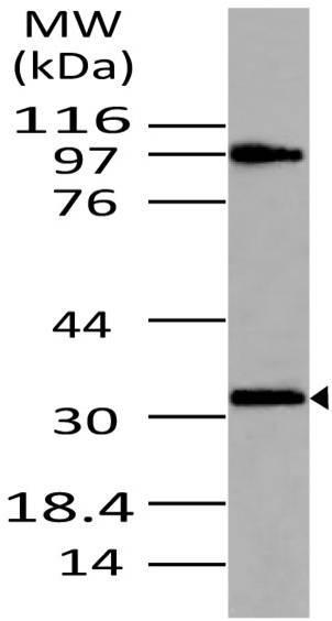 Polyclonal Antibody to MyD88