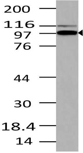 Polyclonal Antibody to TRIL