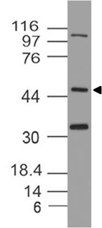 Polyclonal Antibody to TxNIP/VDUP1