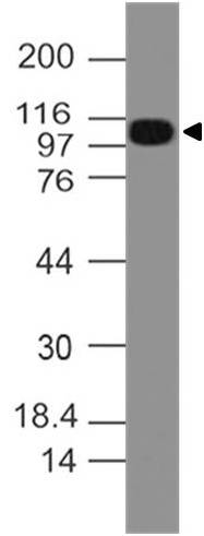 Polyclonal Antibody to NALP3/CIAS1/Cryopyrin/PYPAF1