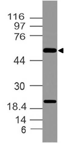 Polyclonal Antibody to IMPDHII