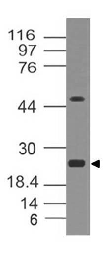 Polyclonal Antibody to EBI3, mouse
