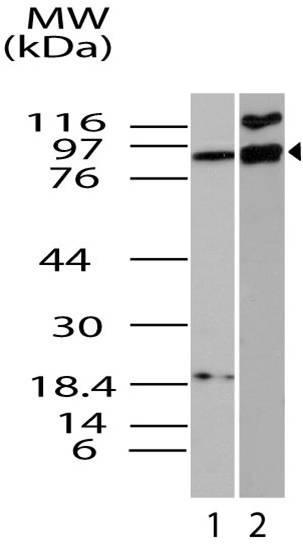 Polyclonal Antibody to ifi-204