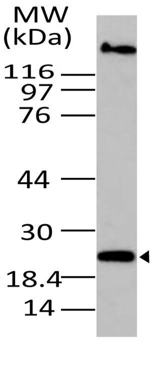 Polyclonal Antibody to CLEC8A