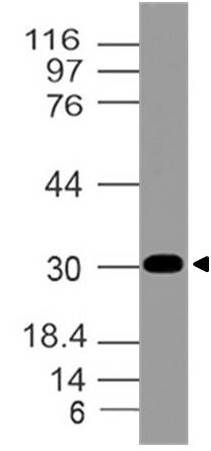 Polyclonal Antibody to AIMP2