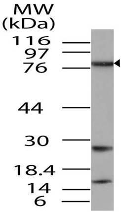 Polyclonal Antibody to TAB3