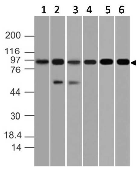 Polyclonal antibody to NIK