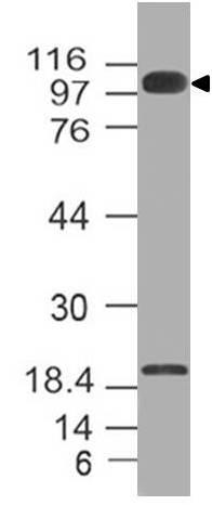 Polyclonal Antibody to Furin