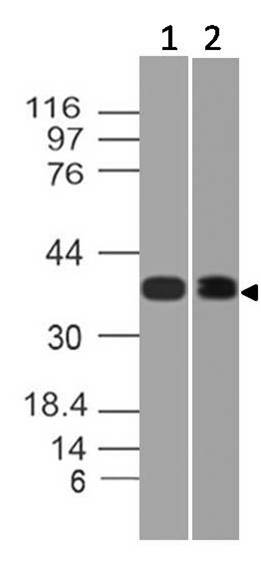 Polyclonal Antibody to HDAC11