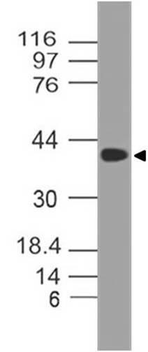 Polyclonal Antibody to SETD7