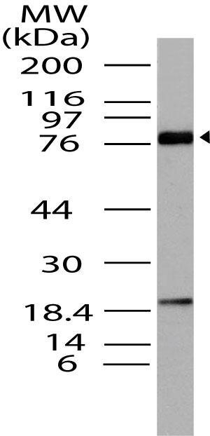 Polyclonal Antibody to BRD4, HUNK1