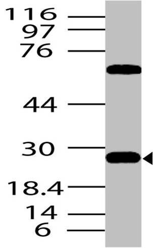 Polyclonal Antibody to DKK1