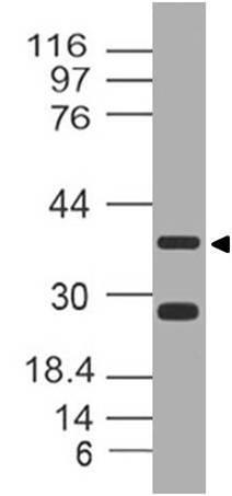 Polyclonal Antibody to Leucine rich alpha 2 glycoprotein1
