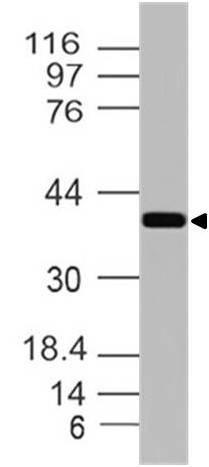 Polyclonal Antibody to EpCAM-cyt