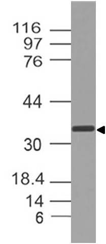 Polyclonal Antibody to SPARC/Osteonectin