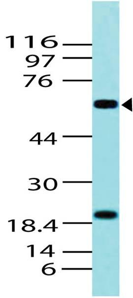 Polyclonal Antibody to p63