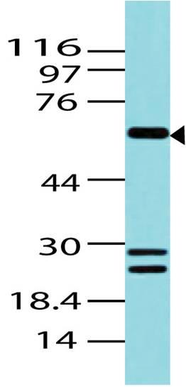 Polyclonal Antibody to BCL6