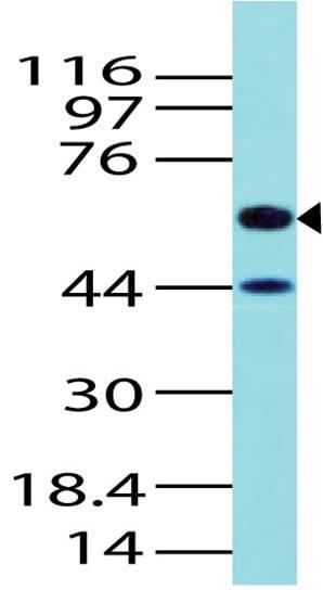 Polyclonal Antibody to ALK1