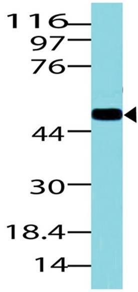 Polyclonal Antibody to Glut1