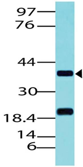 Polyclonal Antibody to PAX5