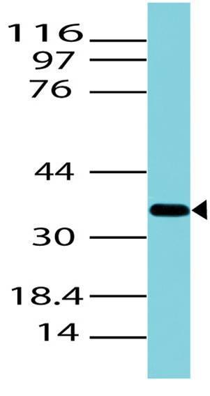 Polyclonal Antibody to Arginase