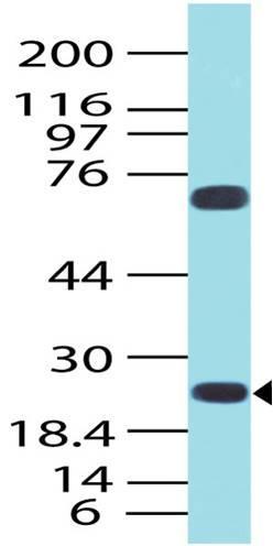 Polyclonal Antibody to HGAL