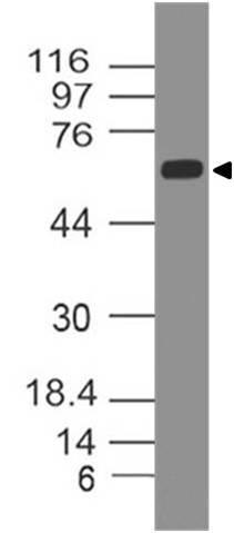 Polyclonal Antibody to PTEN