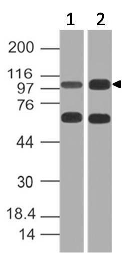 Polyclonal Antibody to CD10