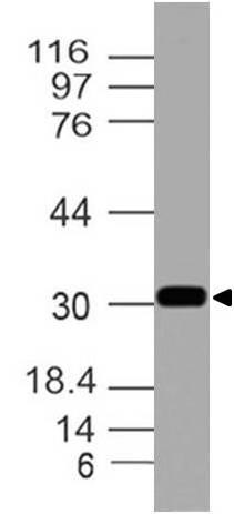 Polyclonal Antibody to Calretinin
