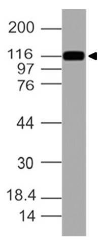 Polyclonal Antibody to Cadherin-17