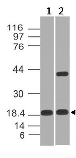 Polyclonal Antibody to CELA3B