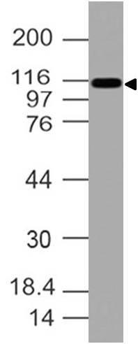 Polyclonal Antibody to CD11C
