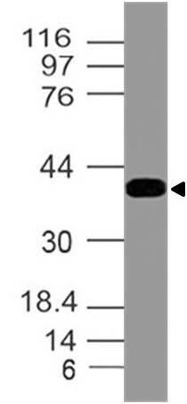 Polyclonal Antibody to INI-1/SNF5