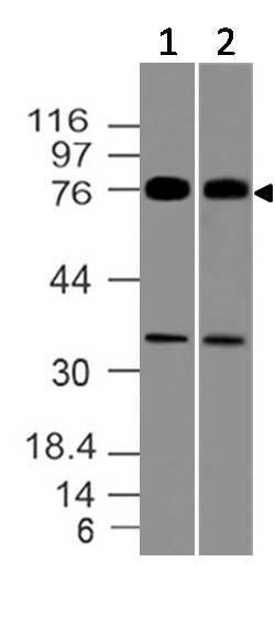 Polyclonal Antibody to MUM1