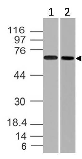 Polyclonal Antibody to Endoglin