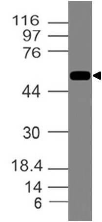 Polyclonal Antibody to Vimentin
