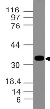 Polyclonal Antibody to EpCAM-ext