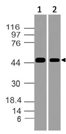 Polyclonal Antibody to NSE gamma