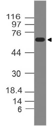 Polyclonal Antibody to GAD65