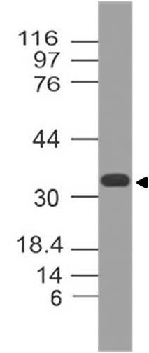 Polyclonal Antibody to MTAP