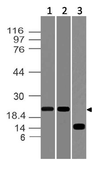 Polyclonal Antibody to  Ferritin heavy chain