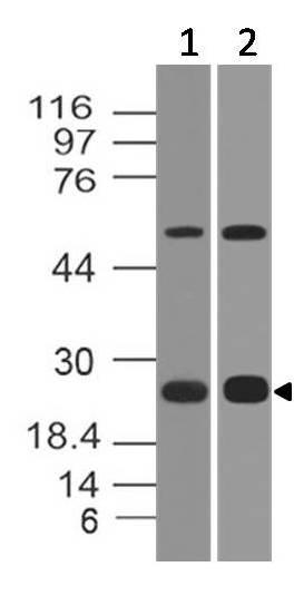 Polyclonal Antibody to B7-H4 mouse