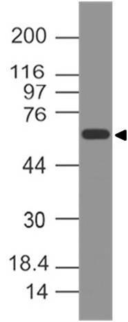 Polyclonal Antibody to CD141