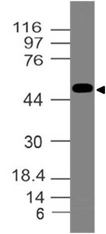 Polyclonal Antibody to Estrogen Receptor alpha