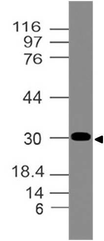 Polyclonal Antibody to NKx2.2