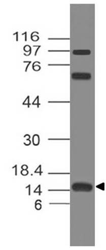 Polyclonal Antibody to FABP5