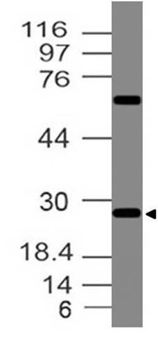 Polyclonal Antibody to Erythropoietin