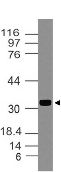 Polyclonal Antibody to TIMP1