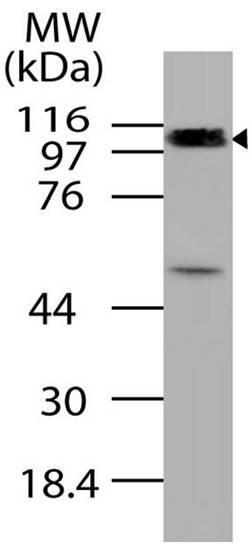 Polyclonal Antibody to CYLD